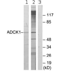 Western blot - ADCK1 antibody (ab72760)