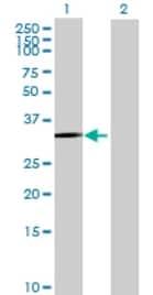 Western blot - ROM1 antibody (ab72973)