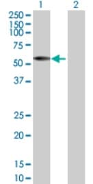 Western blot - IRX2 antibody (ab72975)
