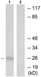 Western blot - RPL10L antibody (ab73719)