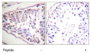 Immunohistochemistry (Formalin/PFA-fixed paraffin-embedded sections) - HSL/LIPE antibody (ab73736)