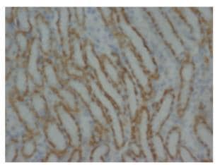 Immunohistochemistry (Formalin/PFA-fixed paraffin-embedded sections) - MMP16 antibody (ab73877)