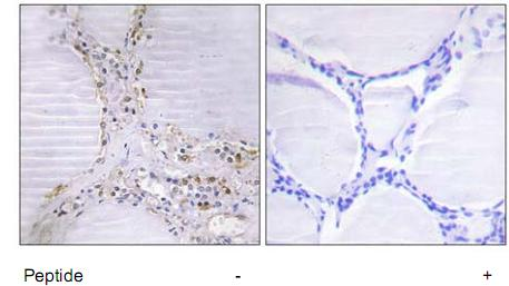 Immunohistochemistry (Formalin/PFA-fixed paraffin-embedded sections) - BMX antibody (ab73887)