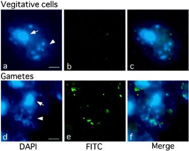 Immunocytochemistry - Anti-5-methylcytosine (5-mC) [5MC-CD] antibody (ab73938)