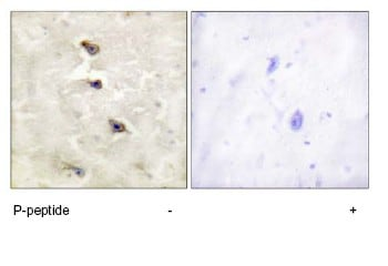 Immunohistochemistry (Formalin/PFA-fixed paraffin-embedded sections) - ALK (phospho Y1507) antibody (ab73996)
