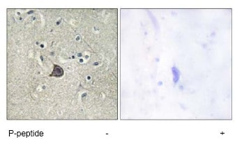 Immunohistochemistry (Formalin/PFA-fixed paraffin-embedded sections) - Phospholipase C beta 3 (phospho S537) antibody (ab73998)