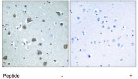 Immunohistochemistry (Formalin/PFA-fixed paraffin-embedded sections) - GNAL antibody (ab74049)