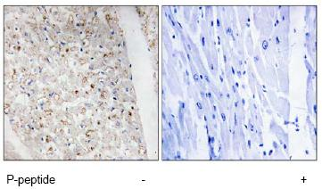 Immunohistochemistry (Formalin/PFA-fixed paraffin-embedded sections) - PKC mu (phospho S738 + S742) antibody (ab74105)