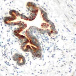 Immunohistochemistry (Formalin/PFA-fixed paraffin-embedded sections) - SLC25A21 antibody (ab74106)