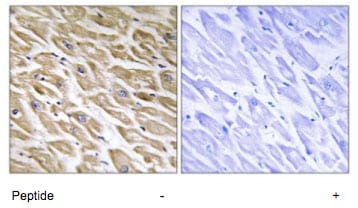 Immunohistochemistry (Formalin/PFA-fixed paraffin-embedded sections) - MRPL39 antibody (ab74107)