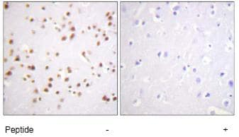 Immunohistochemistry (Formalin/PFA-fixed paraffin-embedded sections) - delta 1 Catenin antibody (ab74124)