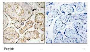 Immunohistochemistry (Formalin/PFA-fixed paraffin-embedded sections) - APOBEC3D + APOBEC3F antibody (ab74205)