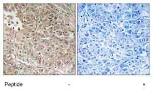 Immunohistochemistry (Formalin/PFA-fixed paraffin-embedded sections) - ABCC13 antibody (ab74207)