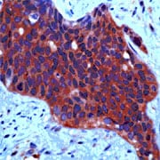 Immunohistochemistry (Formalin/PFA-fixed paraffin-embedded sections) - Met (c-Met) antibody (ab74217)