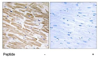 Immunohistochemistry (Formalin/PFA-fixed paraffin-embedded sections) - NEURL2 antibody (ab74266)