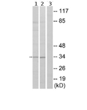 Western blot - Bone marrow stromal cell antigen 1 antibody (ab74301)