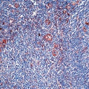 Immunohistochemistry (Formalin/PFA-fixed paraffin-embedded sections) - alpha 1 Antitrypsin antibody, prediluted (ab74664)
