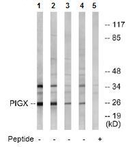 Western blot - PIGX antibody (ab74670)