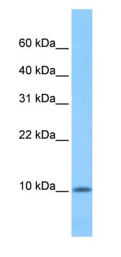 Western blot - C20ORF141 antibody (ab74718)