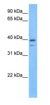 Western blot - VP26B antibody (ab74745)