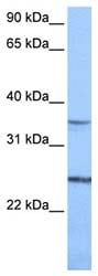 Western blot - PIGF antibody (ab74778)
