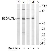 Western blot - B3GALTL antibody (ab74824)
