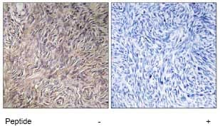 Immunohistochemistry (Formalin/PFA-fixed paraffin-embedded sections) - FGF22 antibody (ab74860)