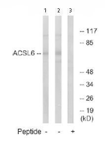 Western blot - ACSL6 antibody (ab74985)