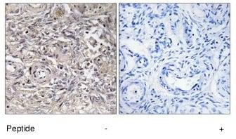 Immunohistochemistry (Formalin/PFA-fixed paraffin-embedded sections) - Claudin 6 antibody (ab75055)