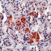 Immunohistochemistry (Formalin/PFA-fixed paraffin-embedded sections) - ACTH antibody [AH26], prediluted (ab75071)