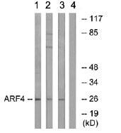 Western blot - ARF4 antibody (ab75073)