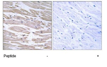 Immunohistochemistry (Formalin/PFA-fixed paraffin-embedded sections) - DNAJB11 antibody (ab75107)