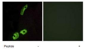 Immunocytochemistry/ Immunofluorescence - GPCR 2037 antibody (ab75131)