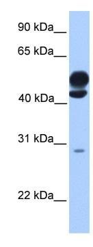 Western blot - KLC3 antibody (ab75138)