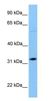 Western blot - DNALI1 antibody (ab75164)