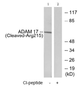 Western blot - ADAM17 antibody (ab75181)