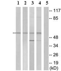 Western blot - EMR4 antibody (ab75191)