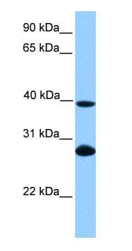 Western blot - NCE2 antibody (ab75193)