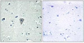 Immunohistochemistry (Formalin/PFA-fixed paraffin-embedded sections) - Endothelin B Receptor Like Protein 2 antibody (ab75194)