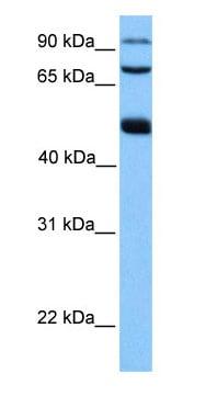 Western blot - WDR49 antibody (ab75195)