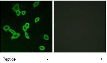 Immunocytochemistry/ Immunofluorescence - GPCR LGR6 antibody (ab75504)
