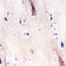Immunohistochemistry (Formalin/PFA-fixed paraffin-embedded sections) - ULK2 antibody - Aminoterminal end (ab76041)