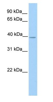 Western blot - NEK6 antibody (ab76071)