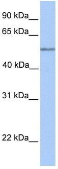 Western blot - C17orf74 antibody (ab76206)