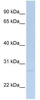 Western blot - SIGIRR antibody (ab76401)