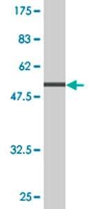 Western blot - Tropomyosin 3 antibody (ab76439)