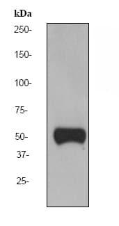 Western blot - Vitamin D Binding Protein antibody [EPR2922Y] (ab76537)
