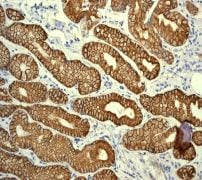 Immunohistochemistry (Formalin/PFA-fixed paraffin-embedded sections) - Cytokeratin 19 antibody [EPR1579Y] (ab76539)