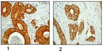 Immunohistochemistry (Formalin/PFA-fixed paraffin-embedded sections) - Cytokeratin 8 (phospho S23) antibody [EP1629Y] (ab76584)