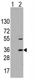 Western blot - TRAP alpha antibody - Aminoterminal end (ab76595)